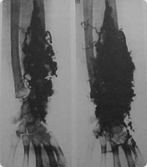 Imagem angiográfica de Mal formação capilaro-venosa em membro superior. (18)