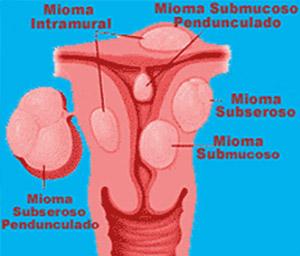 Mioma Uterino - Miomas - Embolution