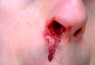 Hemorragia Nasal - epistaxe - Embolution