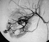 Hemorragia urologica provocada por um trauma-norim direito - 02 - Embolution