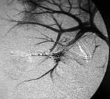 Hemorragia urologica provocada por um trauma-norim direito - 03 - Embolution