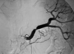 Sangramento digestivo provocado por um aneurisma - 02 - Embolution