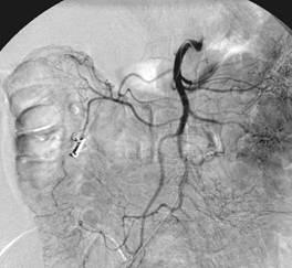 Sangramento no intestino provocado por um diverticulo - 01 - Embolution